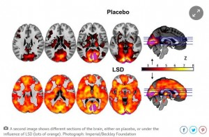 LSD on the Brain