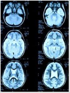 traumatized-brains